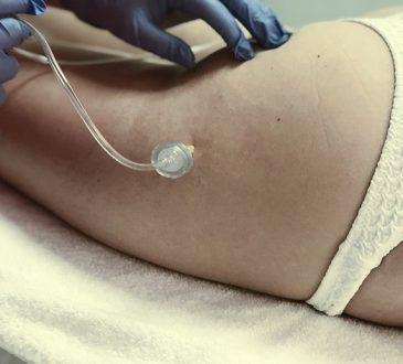 Carbossiterapia corpo