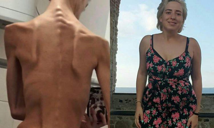 francesco ex anoressia